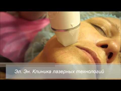 RF-лифтинг (радиоволновой лифтинг) лица