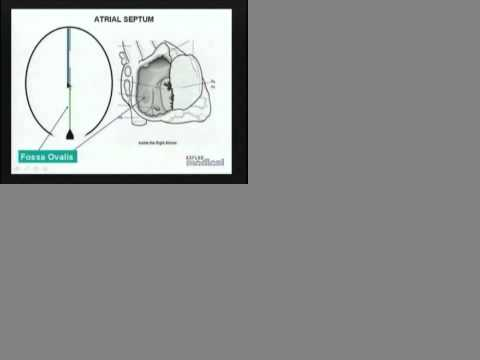 USMLE - Embryology of Heart - Part 1
