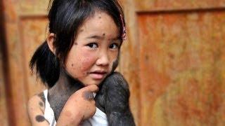 Девочка-обезьянка - Моя Ужасная История