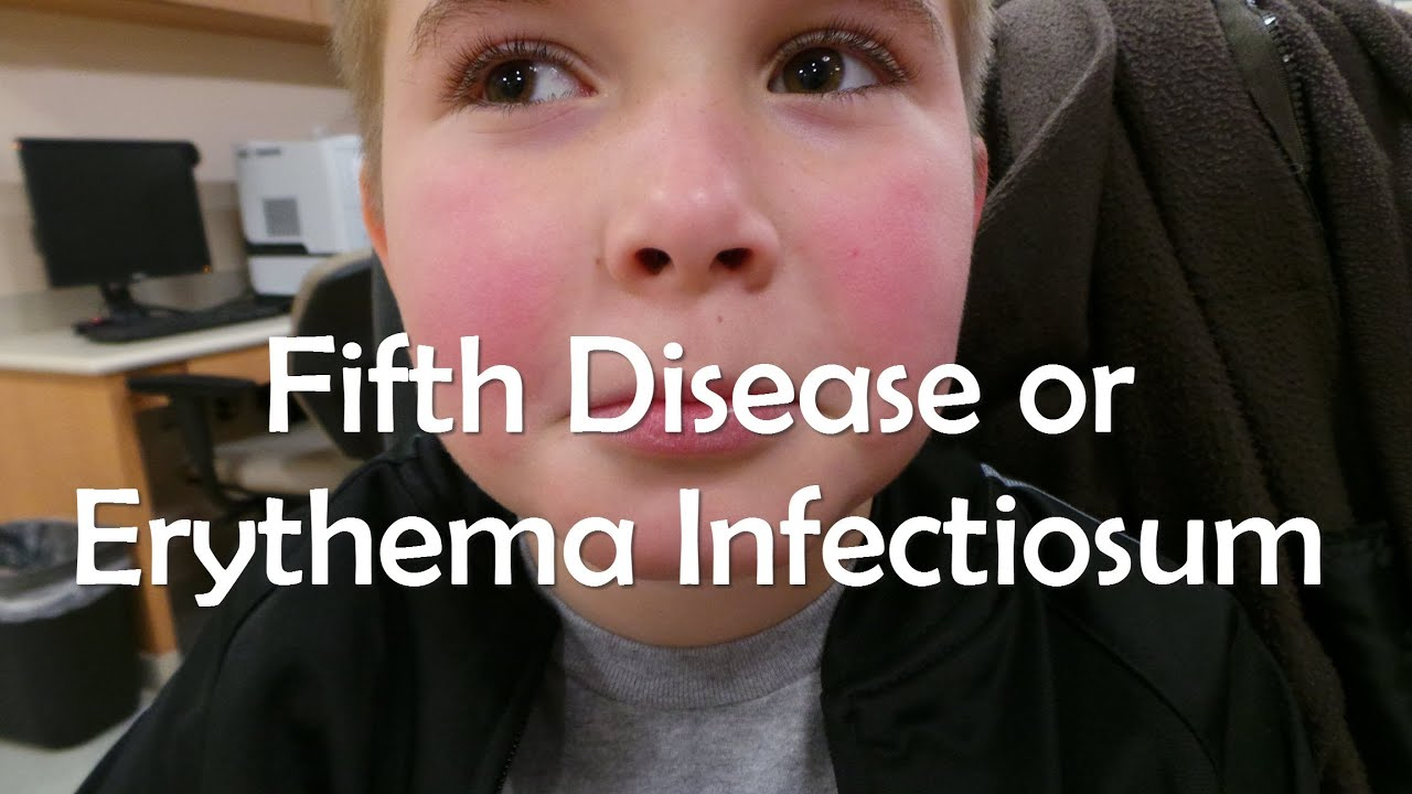 images of fifths disease