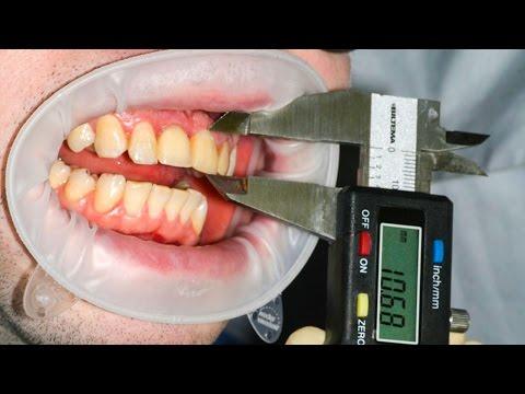 Как можно вырвать зуб при флюсе