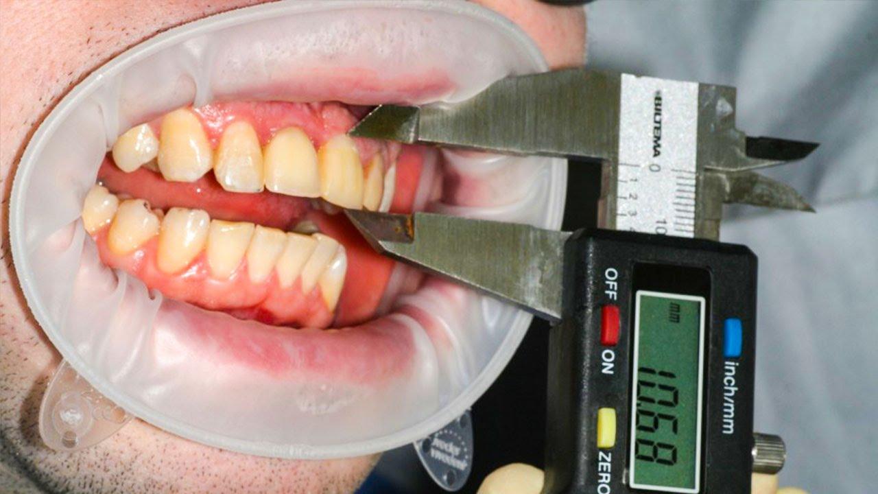 Как вылечить зуб в домашних условиях без дырки 502