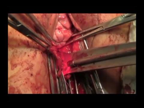Histerectomía vaginal con Prolapso Cirugía completa
