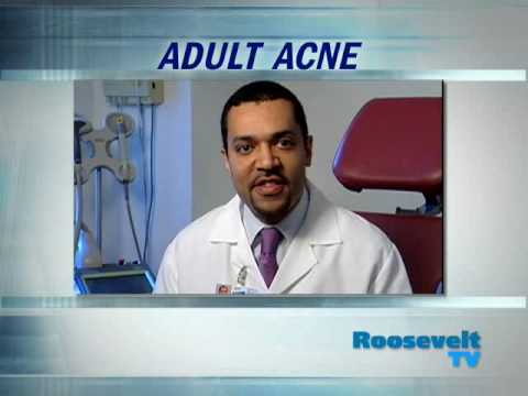 Adult acne treatment. Dr. Andrew Alexis, dermatologist at Roosevelt Hospital in New York City