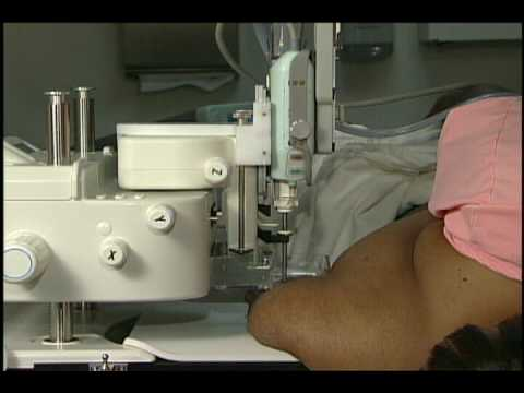 Stercoctic breast biopsy system