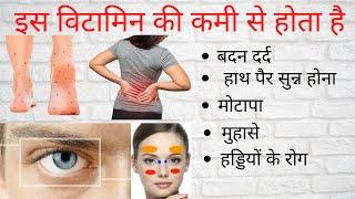 बदन दर्द,हाथ पैर सुन्न,हड्डियों रोग- तो इस विटामिन की कमी,deficiency of vitamin symptoms & treatment