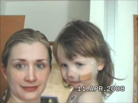 Alternating Hemiplegia Child Alternating Hemiplegia