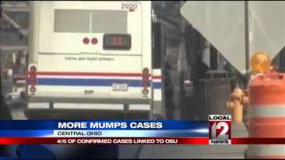 Central Ohio mumps outbreak grows to 111 cases