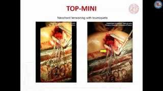 Transapical off-pump mitral valve repair with neochord implantation (TOP-MINI): step-by-step guide