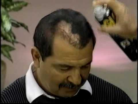 1990's INFOMERCIAL HELL #19: Spray paint the bald away with GLH, by Ronco, of course!