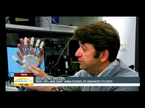 A Danish amputee has become the first person to try out a bionic hand