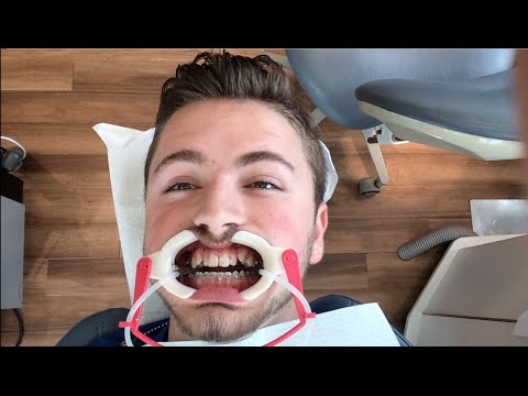 Getting Braces: Appointment #11: Does The Procedure Hurt? 08.28.2014