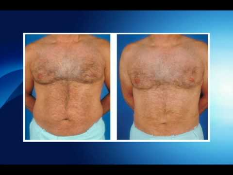 Gynecomastia - A Silent Disease in Males