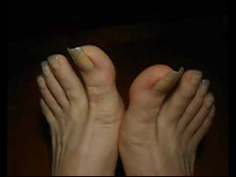 toenails getting way too long   youtube