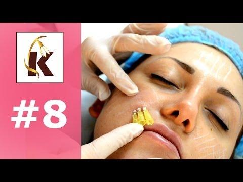 Мезонити 3D-тредлифтинг- понятная косметология (выпуск 8)