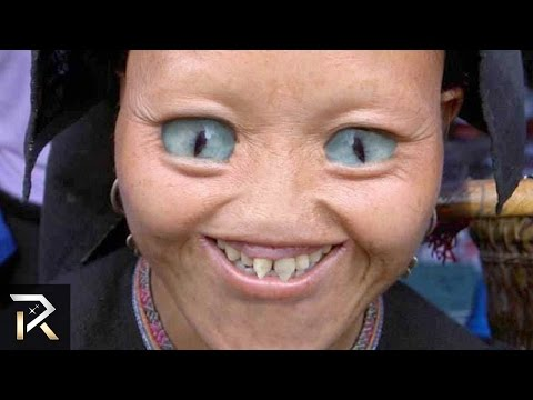 10 Real People With Shocking Genetic Mutations