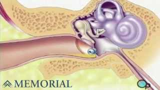 Myringotomy Insertion Of Tube Ear Surgery VideoMp4Mp3.Com