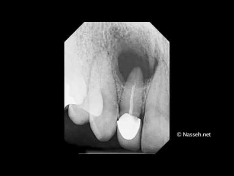 Retrograde / Orthograde Root Canal Therapy tutorial