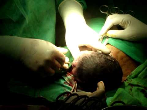 Cesarean baby birth @Kurunegala 2010-05-17 by Dr. Lenadora Cesarean
