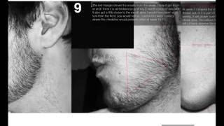 Minoxidil Beard Week 1 Side Effects And Progress You