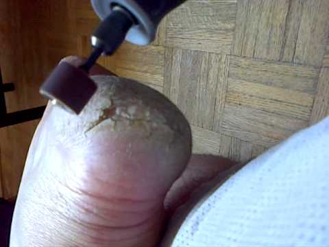 Home remedy for dry cracked heels pt.1