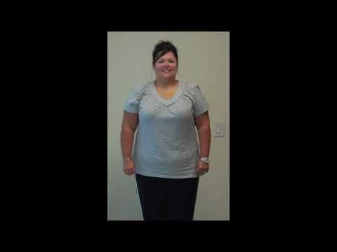Amazing VSG Transformation (Gastric Sleeve)
