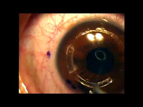 Intacs for keratoconus using the intralase femtosecond laser