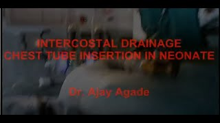 Chest tube insertion in neonate