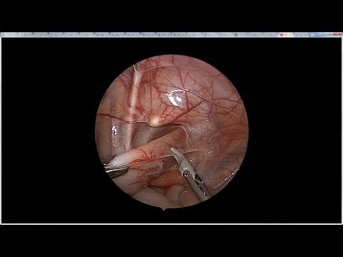 Lap Pull Through for Imperforate Anus - Narrated - 3mm JustRight Sealer & 5mm Stapler thumbnail