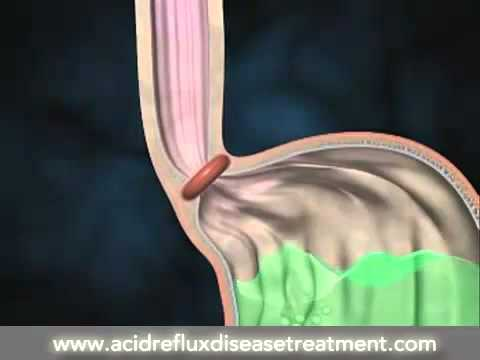 Acid Reflux Disease Causes And Symptoms