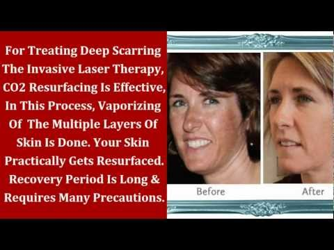 Beauty Treatments | Skin Resurfacing Laser Therapy For Hyper-Pigmentation | Beauty, Fashion & Makeup
