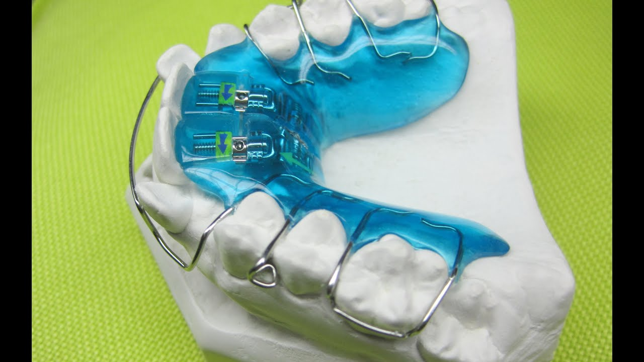 Dehnplatte 2 4 Zahnspange Schritt F 252 R Schritt Active Plate