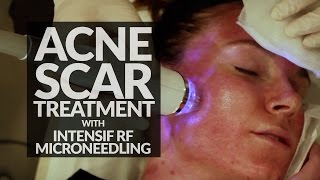 Microneedling Acne Scar Treatment | Intensif RF Micro Needling