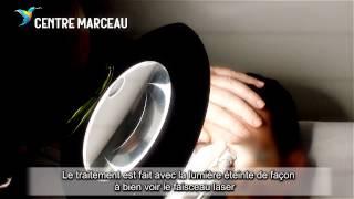 Epilation laser sourcils - Centre Marceau Paris