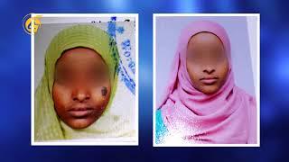 plastic surgery in Ethiopia