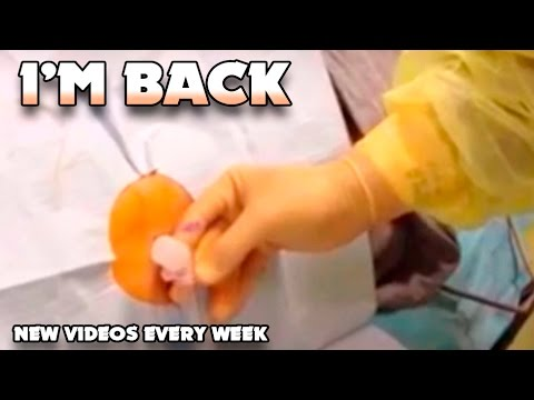 Lumbar Puncture Procedure; This Is A Spinal Tap!