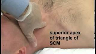 Jugular Central Venous Catheterization   Step by step