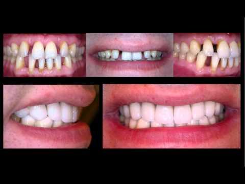 Kozmetik ve Estetik Diş Hekimliği: Laminat Vener ve Seramik Protezler