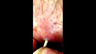 Botfly #2 - the extraction