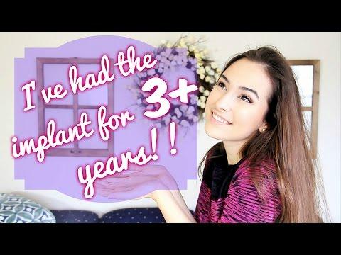 Birth Control Implant    3 Year Update