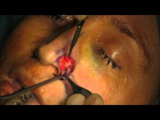 Nasal Ala Reconstruction with Nasolabial Flap and Ear Cartilage Graft, Stage I