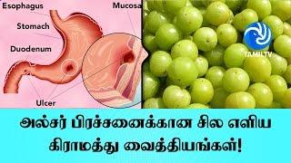 அல்சர் பிரச்சனைக்கான சில எளிய கிராமத்து வைத்தியங்கள்! – Tamil TV