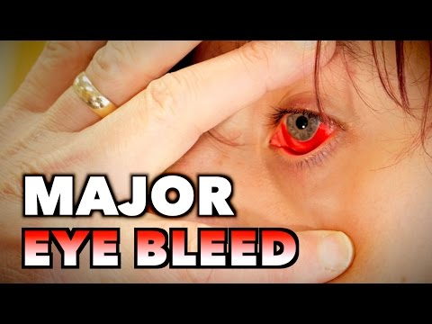 MAJOR EYE BLEED + (Possible Mono, Spleen Exam, & Blood Draw) | Dr. Paul