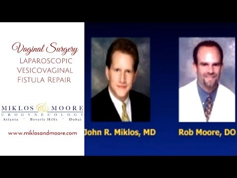 Vaginal Surgery - Laparoscopic Vesicovaginal Fistula Repair by Miklos and Moore