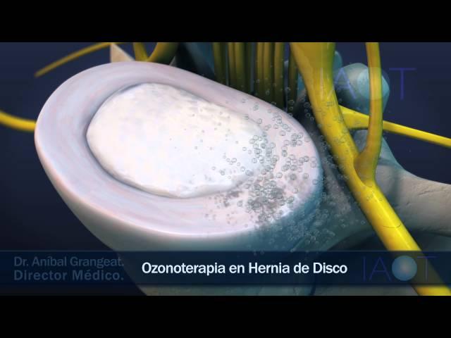 IAOT 3D Ozonoterapia en Hernia de Disco