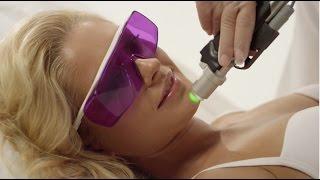 Лазерная Эпиляция МОВЕО / Laser hair removal MOVEO (Сosmetology)