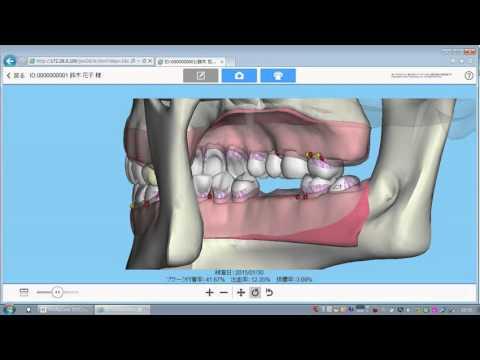 歯周状態説明支援システム紹介ムービー(咬合面)
