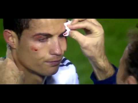 Cristiano Ronaldo (KO) ojo golpeado (madrid vs levante)
