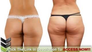 The Main Causes of Cellulite