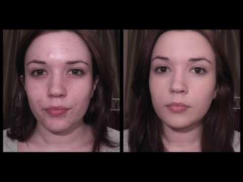 Foundation Routine For Acne Prone Skin